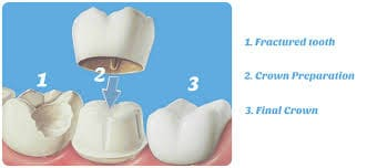 Crown Over Root Canal
