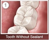 Tooth Without Sealant